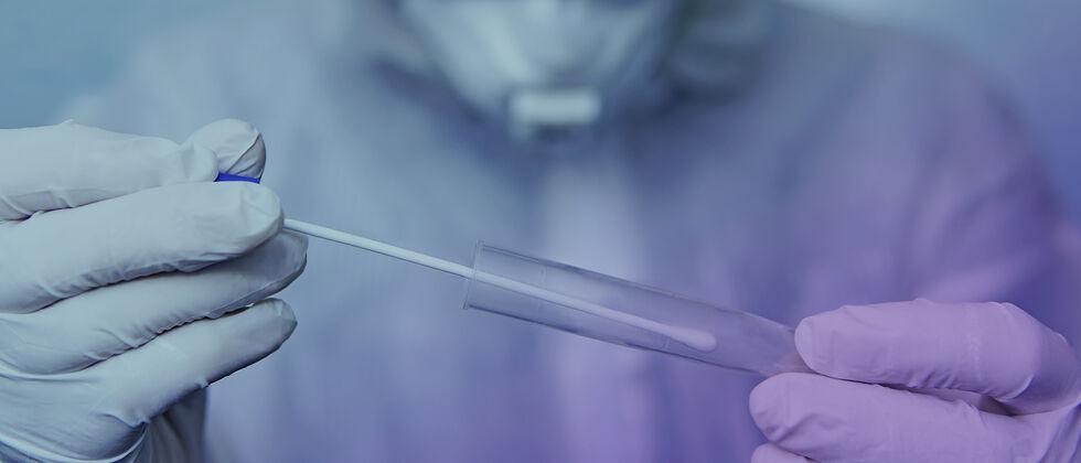 Estudo da infeção por SARS-CoV-2 na Universidade de Lisboa | 2.ª fase de testes (ano letivo 2020-21)